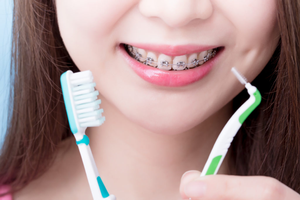 Girl with braces smile while holding tooth brush and braces-friendly flosser