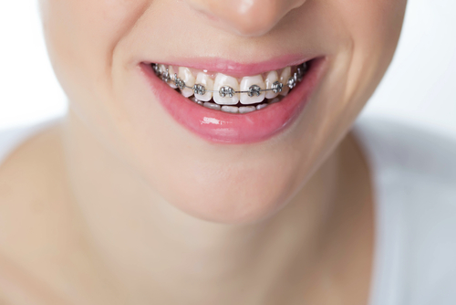 Image of woman's mouth smiling and wearing metal braces.