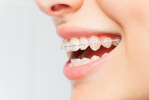 Sideview of woman's mouth smiling and wearing ceramic braces on teeth.