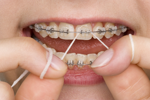 Image of a mouth with braces with the person flossing.