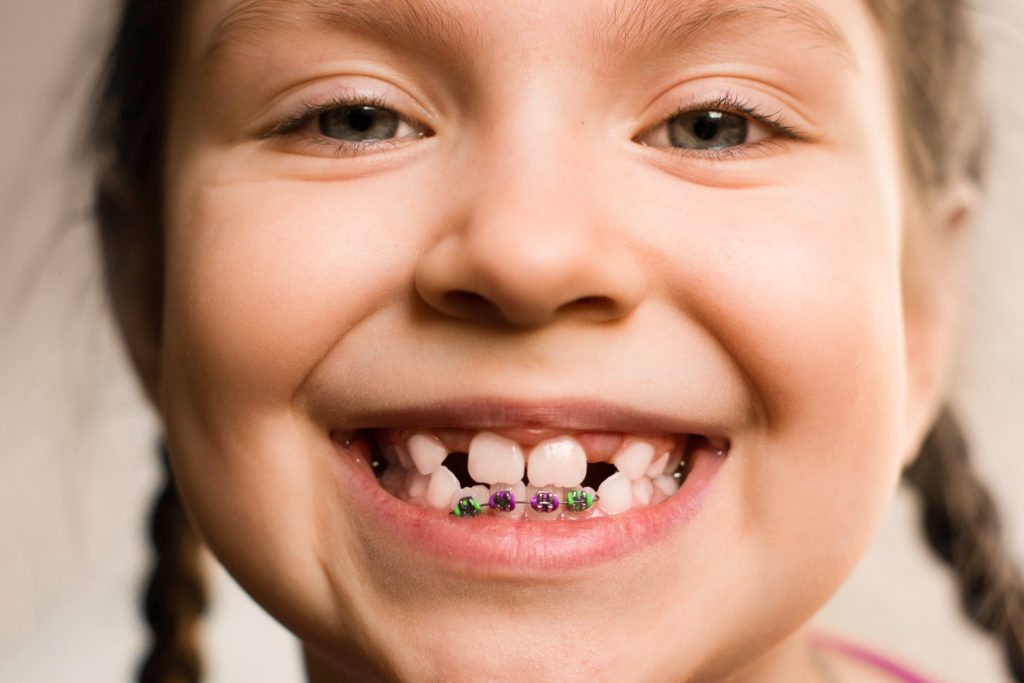 Young girl smiles to show partial orthodontic braces