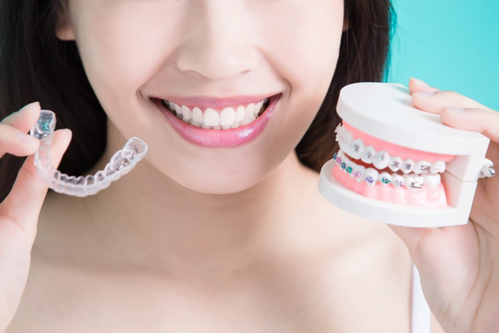 Woman choose between Invisalign Aligners and braces model